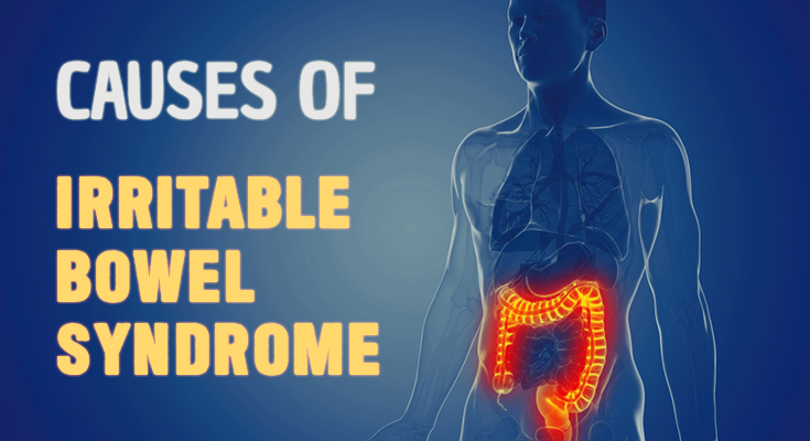 irritable bowel syndrome cause