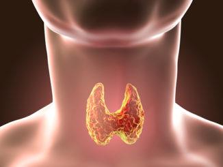 Hyperthyroidism Symptoms