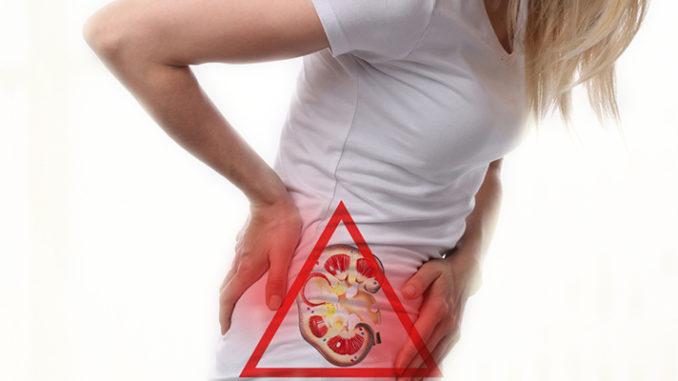 women kidney stone