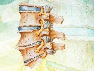 l4 l5 spinal