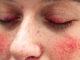 चेहरे पर लाल धब्बों